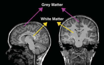 the science of reading - white matter